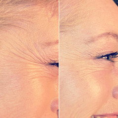 Client received 9 units to crows feet