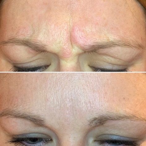 Client received 15 units to glabella