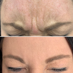 Client received 15 units of Botox to glabella