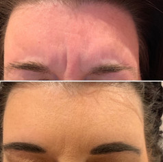 Client received 15 units of Botox to glabella (frown lines)