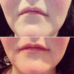 Client used 1 syringe of Juvederm Ulta between her marionette lines and lips