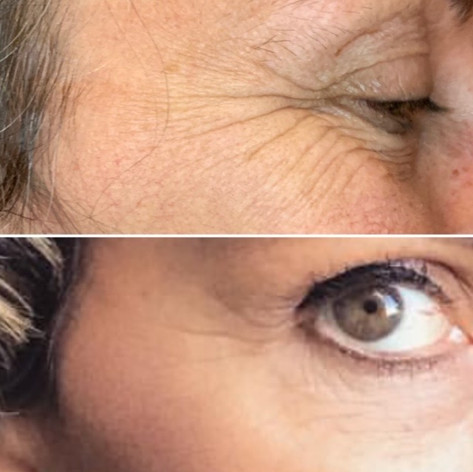 Client wanted natural looking results, and used only 6 units to achieve this result