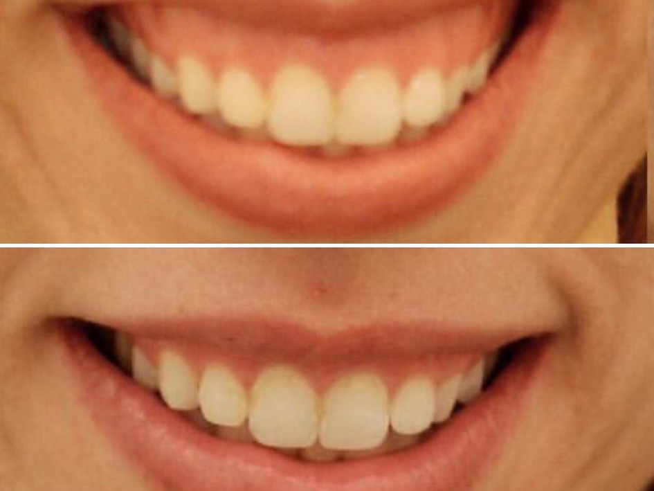 Gummy smile? Easy fix with 4-8 units of Botox