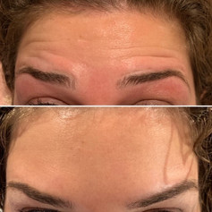 Client received 7 units of Botox to forehead