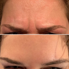 Client received 15 units to glabella region