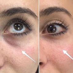 Tear trough correction