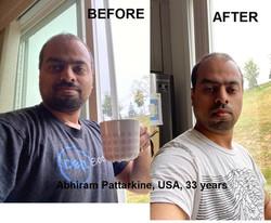 Abhiram Pattarkine , USA, 33 years