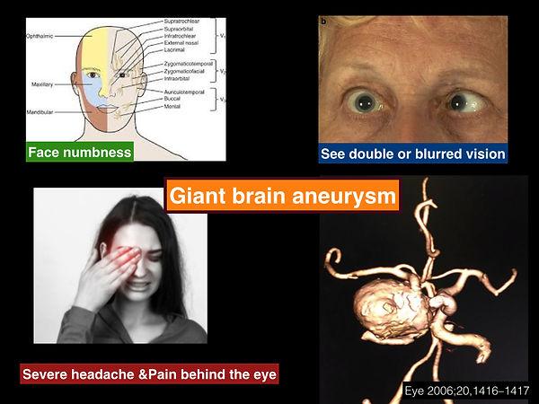 Giant cavernous ICA aneurysm FB.001.jpg