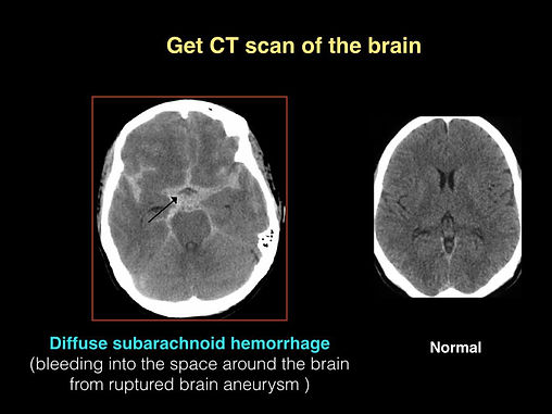 SAH CT scan.jpg