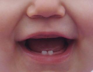 O primeiro dente de leite! E agora, meu dente está mole? O que eu faço?