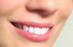 estética bucal com resina branca, ortodontista