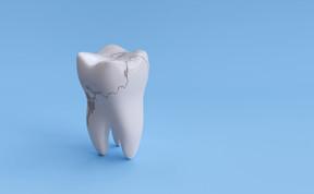 Trauma no dente x canal