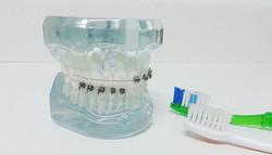 dentetransparente1