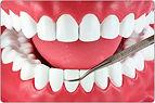 periodontia e gengivite