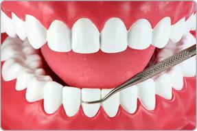 Você sabe o que é gengivite e periodontite?