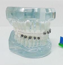 ortodontista, aparelho ortodôntico