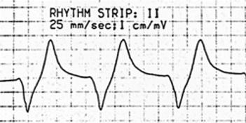 rhythmStrip.png