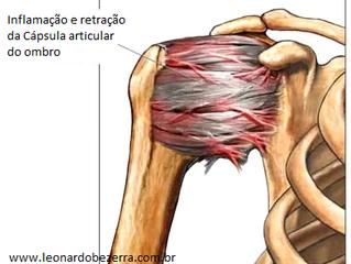 Fisioterapia para Capsulite Adesiva