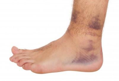 Sinais da entorse de tornozelo