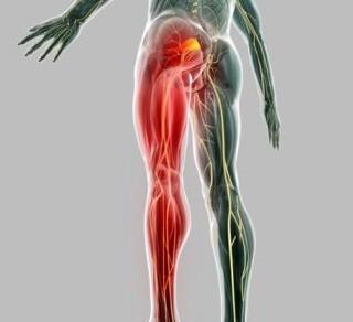 Dor ciática em fortaleza tratamento