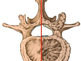 As três principais causas de dor lombar. E o que você pode fazer para resolver.