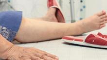 Quedas e Idoso - Como a fisioterapia pode ajudar