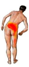 Dor ciatica em fortaleza tratamento