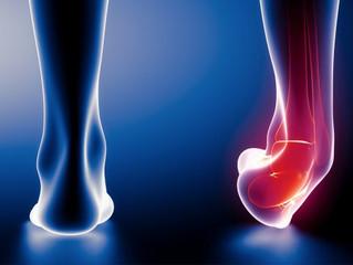 Cinco sinais que o seu tornozelo não está tão bem