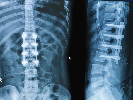 Cirurgia para Coluna - Fusão