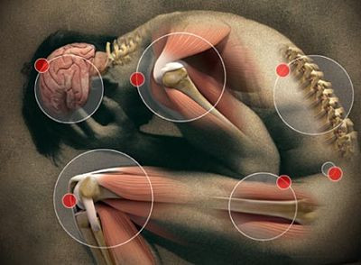 A dor não é sempre igual ao dano tecidual