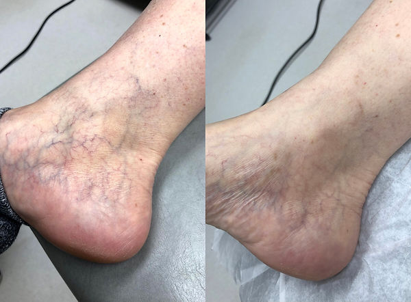 Susan foot 8 week follow up.JPG