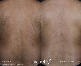 excel-HR_Hair_1.jpg