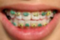 metal braces, maruko orthodontics