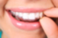 clearcorrect, invisalign, clear aligners, maruko orthodontics