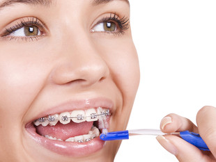 Five Tips in Caring For Your Braces