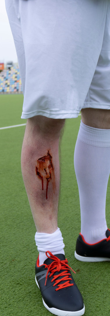 fussballverletzung2.jpg