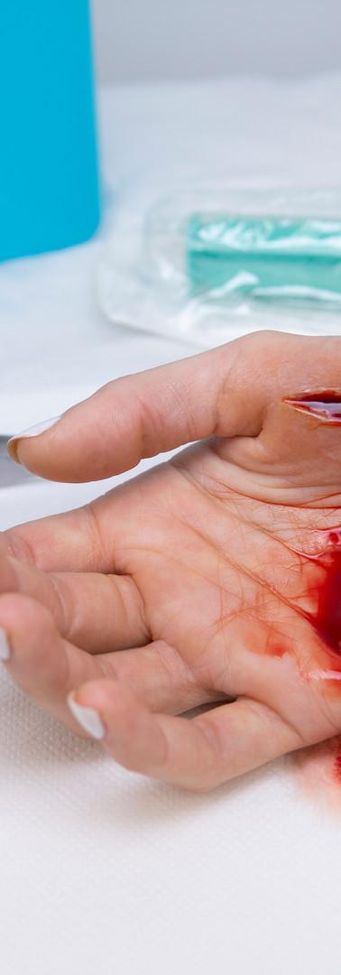 schnittwunde handballen1.jpg