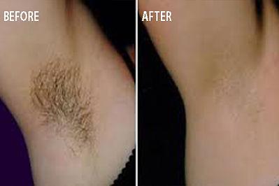 venulapis-men-shr-armpit.jpg
