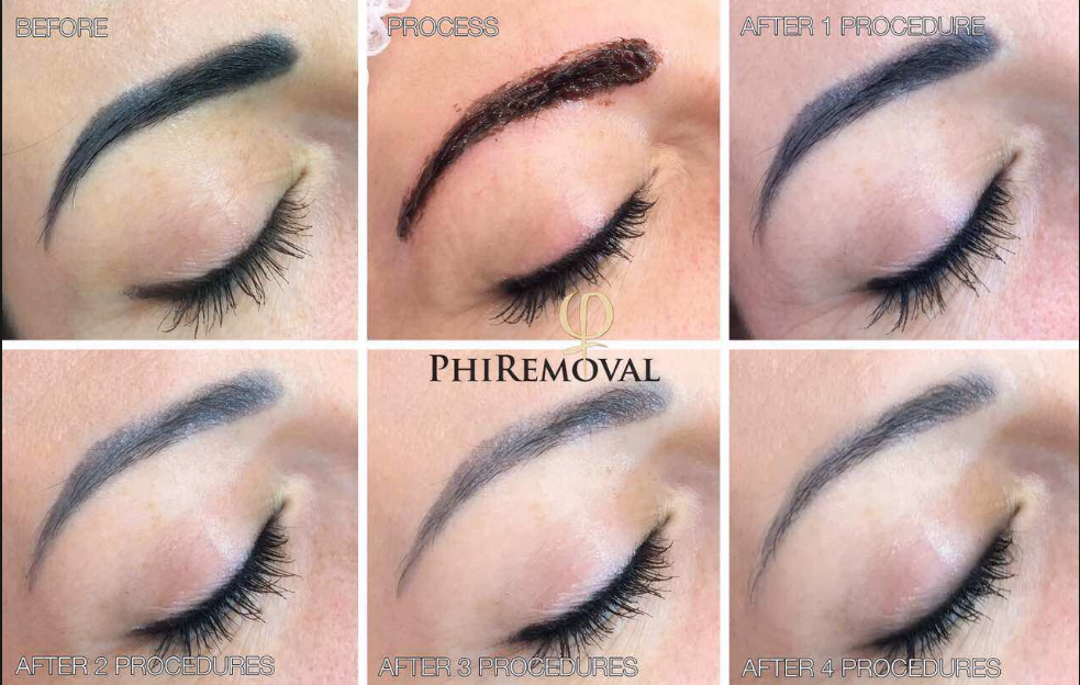 PhiRemoval Process