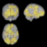 386548_MR_av_hjernen_under_ledig_meditas