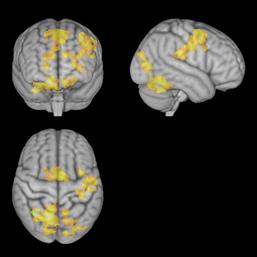 386547_MR_av_hjernen_under_konsentrert_m