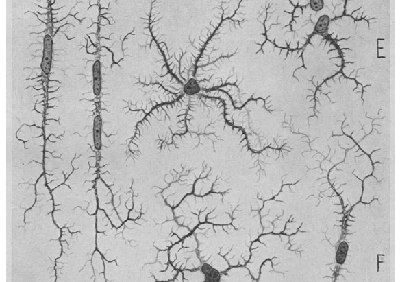 Microglia - the underrated cell type of the brain