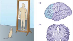 BRAIN ORGANOIDS: Understanding the human brain in three dimensions