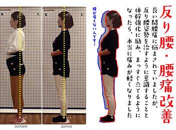 反り腰・腰痛改善した方の姿勢ビフォアアフター画像