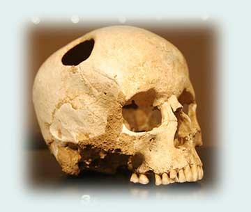 Historia de la locura (I): de la Edad de Piedra a Hipócrates