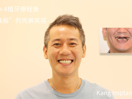 All-On-4植牙療程大成功~!