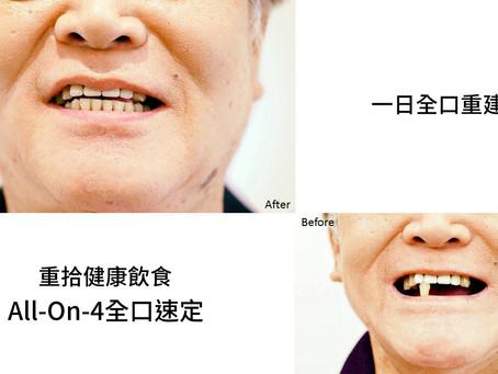 All-On-4植牙療程,簡單吃頓飯。
