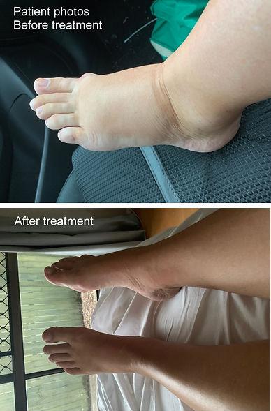 Reflexology treatment results