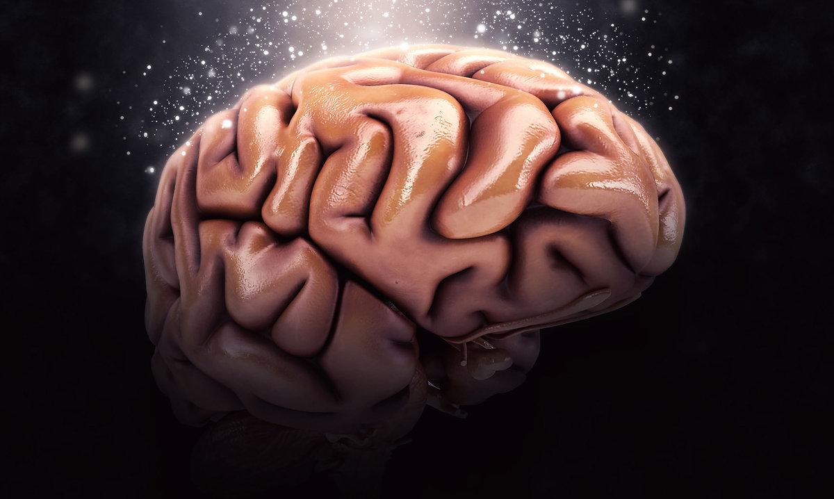 top_brain-u1726-fr.jpg