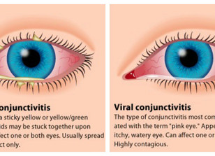 What Is Pink Eye & How Do I Treat It?